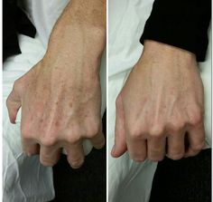 Before and After one IPL treatment.  http://lewisvillelaser.com/site/services/ipl-skin-rejuvenation/