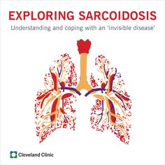 Sarcoidosis can affect the lungs, eyes, and other organs. Learn diagnosis and treatments available.