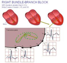 (4) (PDF) 19. The Basis of ECG Diagnosis Heart Procedures, Bundle Branch Block, Nurse Meaning, Cardiac Rhythms, S Wave, Medicine Student, Heart Health, Clinic, Nursing