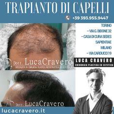 Trapianto di Capelli | F.U.T. F.U.E. ░ Dr. Luca Cravero ░ Chirurgia Plastica ed Estetica ░ Torino e Milano  I pazienti con un livello di calvizie pari a Norwood V o VI dovrebbero orientarsi verso una combinazione di F.U.E. e F.U.T. per cercare di ottenere il numero maggiore di capelli da trapiantare.💇👱 @drlucacravero 📌 http://lucacravero.it/autotrapianto-di-capelli  #drlucacravero #trapiantodicapelli #autotrapiantodicapelli #capelli #trapianto #FUT #FUE #diradamentodeicapelli #calvizie