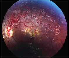 Hemispheric Retinal Arteriovenous Anastomoses (Wyburn-Mason Syndrome)  < Previous ArticleNext Article > Ophthalmic Images | November 12, 2015 Hemispheric Retinal Arteriovenous Anastomoses (Wyburn-Mason Syndrome) ONLINE ONLY Eric K. Chin, MD1; D. Brice Critser, BS, CRA1; David R. P. Almeida, MD, MBA, PhD1 [+] Author Affiliations JAMA Ophthalmol. 2015;133(11):e151687. doi:10.1001/jamaophthalmol.2015.1687.