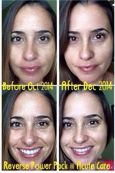 #reverse sundamage and #hyperpigmentation This is Lori Jimenez, LOVES surfing - sun and RODAN & FIELDS #Reverse! She began using the Reverse regimen w/ both tools (Amp MD Roller W/ the Macro-E) in October, these are her results today! She is #glowing and loving her #skin! Take advantage of the bundle deal in the next 2 days to save 20% & get a free eye cream! HTTPS:/ElishaPerez.myrandf.com Acute Care will be available in January!