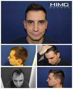 HIMG Klinika hajbeültetési eredménye