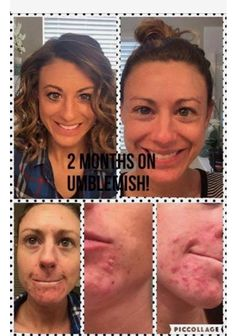 Before and after results! facts tell Stories sell. Look at her face order now join my team mloveall.myrandf.com #rodanandfields #changingskinchanginglives