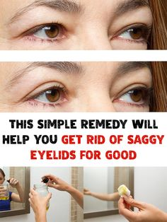 Secret Beauty Remedies This Simple Remedy Will Help You Get Rid of Saggy Eyelids for Good - If you are struggling with saggy eyelids, then you must have gone through the frustrating process of applying make-up! Get Rid of Saggy Eyelids! Saggy Eyes, Droopy Eyelids, Sagging Skin, Home Remedies For Acne, Skin Care Remedies, Acne Remedies, Natural Remedies, Diy Beauty Care, Beauty Hacks