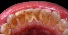 Molti non sono a conoscenza del fatto che la salute orale determina anche la vostra salute generale. Uno dei rimedi fondamentali per l'igiene orale consist