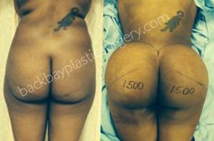 Large buttock augmentation with fat transplantation performed by Dr. Daniel Del Vecchio of Boston