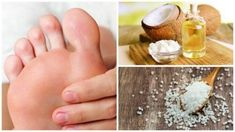 Peeling for føttene med kokosolje og salt - Veien til Helse Anxiety Facts, Anxiety Causes, Anxiety Remedies, Anxiety Tips, Anxiety Thoughts, Anxiety Humor, Anxiety Quotes, Stress Relief Meditation, Stress Relief Tips