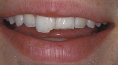 Common Mouth Issues: Chipped Tooth Read an ADA article on the common mouth issues.