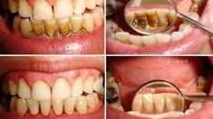 Sağlıklı, beyaz dişlere sahip olmak hem fiziksel görünümümüz hem de vücut sağlığımız için büyük önem taşır.