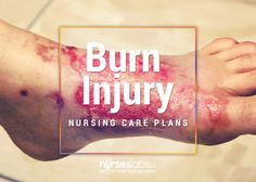 11 Burn-Injury-Nursing-Care-Plans