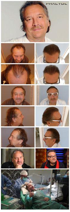 Deze foto toont de resultaten van 4000+ haartransplantaties, tussen de lange haren, binnen 1 dag - op PHAEYDE Clinic. De na foto's werden genomen 1 jaar na de implantatie.  http://nl.phaeyde.com/haartransplantatie