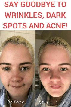 This incredible DIY face mask for acne and blackheads will help you to whiten your skin and clean your face from all those dark spots and freckles! Beauty Care, Beauty Skin, Mask For Dry Skin, Dark Spots, Diy Face Mask, Awesome Things, Health Remedies, Freckles, Whitening