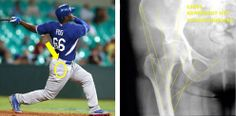 Baseball Injuries, Yasiel Puig, The Outfield, Sport Casual, Dodgers, Weekend Is Over, Mlb, Baseball Cards, Sports