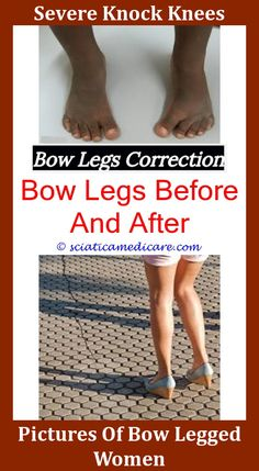legs-bow-legged-women-desi-nude-hot-lesbian