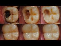 DON'T GO TO THE DENTIST Cure Dental Caries with these tricks, in just 5 steps INTERESTING!! - YouTube #teethplaque