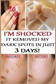 I'm SHOCKED It Removed My Dark Spots In 3 Days, Magic Remedy If you want to make your healthy and younger and at the same time to remove the dark spots. You should use the powerful combination of pomegranate juice, lemon juice, potato and ice cubes. Healthy Beauty, Health And Beauty Tips, Healthy Tips, Natural Beauty Recipes, Health Remedies, Home Remedies, Natural Remedies, Potato Juice, Do It Yourself Fashion