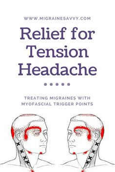 It might just be that myofascial trigger points hold the solution for reducing your migraine pain or tension headaches. It is well worth experimenting with, don't you think? Come see the points you need to work on at www.MigraineSavvy.com