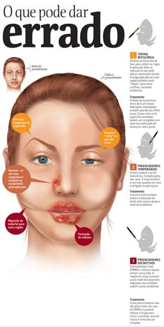 Botox pode dar errado