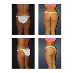 Learn more aboutthe Brazilian Butt Lift procedure and see the best before and after photos from Matthew Schulman, M. New York Plastic Surgeon. Top Plastic Surgeons, Plastic Surgery, Bbl Surgery, Surgery Recovery, Fat Transfer To Buttocks, Body Lift Surgery, Mommy Makeover, Body Curves, Tummy Tucks