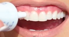 Check out this tutorial by Kandee Johnson for a cheap way to brighten your smile! Whitening your teeth is such an easy way to improve y. Beauty Tips In Hindi, Beauty Tips For Teens, Beauty Tips For Hair, Health And Beauty Tips, Beauty Make Up, Beauty Secrets, Beauty Care, Diy Beauty, Beauty 101