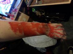 my armmmm 'self harm'