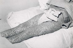 Lower body of man with smallpox