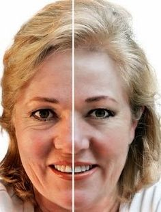 The Best Face Yoga Exercises To Look Younger For A Non-Surgical Facelift: Use These Genuine Face Workouts To Perfect And Tighten Sagging Jowls And Cheeks