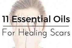11 of the Best Essential oils to use for Scar Tissue healing and reduction Below you will find 11 of the most highly recommended essential oils for scar healing.  Once you've skimmed those be sure to read on to the recipes that follow.  If you want to effectively treat scars with essenti