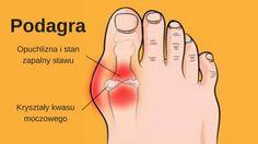 Wszystko zaczyna się od spuchniętych kostek, kolan, dłoni lub stóp. Atak podagry może objawić się silnym, nagłym i ostrym bólem. Może także narastać powoli, zaburzając normalne funkcjonowanie. Za podagrę, częstoodpowiedzialna jest niewłaściwa dieta bogata w tłuszcz