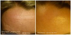 Alissa Palmer results with the AMP MD and Redefine regimen in just 3 weeks!
