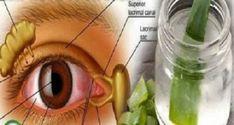 Попрощайтесь с очками и улучшите ваше зрение с этим удивительным рецептом! Не сомневайтесь, попробуйте! Многие люди во всем мире имеют проблемы со зрением. Эта проблема затрагивает людей всех возрастов, включая детей. Тем не менее, вам не придется беспокоиться, потому что русский врач, Вла