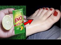 Beauty Tips For Glowing Skin, Health And Beauty Tips, Beauty Skin, Beauty Care, Home Health Remedies, Skin Care Remedies, Dark Eye Circles, Whitening Skin Care, Face Skin Care