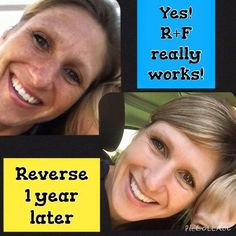 The PROOF is in the PICTURES!  Fellow Rodan + Fields Consultant, Sherry, shares her incredible results with the REVERSE Regimen. Is Reverse Right for you? Find out here -->>> https://juliesmith9.myrandf.com/Pages/OurProducts/GetAdvice/SolutionsTool