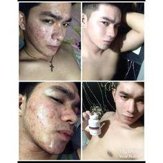 Skin Care, Philippines, Globe, Wellness, Beauty, Products, Speech Balloon, Skincare Routine, Skins Uk
