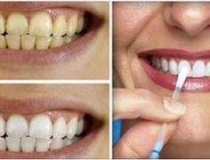 Esta é a forma mais simples e barata de clarear os dentes em casa com apenas 1 ingrediente - Receitas e Dicas