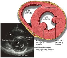 Figure 3: Short axis view at the level of the papillary muscles: http://www.med.yale.edu/intmed/cardio/echo_atlas/contents/index.html