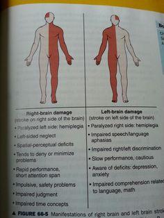 Right vs left sided stroke