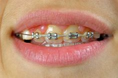"""Discovery Health """"How to Whiten Teeth with Braces"""""""