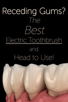 Gingival recession can lead to serious oral health issues. Using the right toothbrush and toothbrush head can prevent damage to the teeth and gums! As a dental hygienist, I discuss how to manage gum recession with my patients all the time, so I wrote a post about what exactly I recommend to my patients!