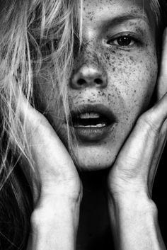 Freckles - Portrait - Black and White - Close-up - Photography Black And White Portraits, Black And White Photography, Pretty People, Beautiful People, Fotografie Portraits, Beautiful Freckles, Freckles Girl, Interview Style, Freckles