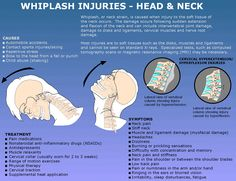 Chiropractors employ various #whiplash treatments for neck pain, shoulder pain, back pain and other related symptoms. Book your appointment here: https://jacksonvillechiropractic.chiromatrixbase.com/imatrix.php?request_appointment=1 and get your treated back to complete recovery from extreme pain.