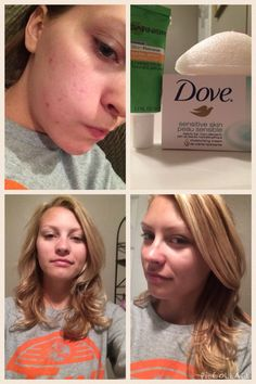 My saving grace! My skin was leaning more towards the severe side in terms of acne. I had tried everything. What finally worked for me was dove soap (sensitive skin), the Eco tools sponge to create a good lather, and the garnier dark spot corrector for lotion. These results are after just two weeks! No makeup:)
