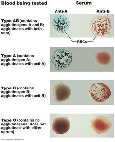 17.16 Blood typing of ABO blood types. When serum containing anti-A or anti-B agglutinins is added to a blood sample diluted with saline, agglutination will occur between the agglutinin and the corresponding agglutinogen (A or B)