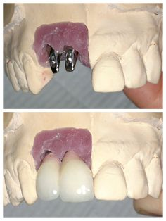 Teeth replacement with dental implants Dental Hygiene, Dental Health, Dental Care, Health Care, Affordable Dental Implants, Teeth In A Day, My Future Job, Dental Technician, Tooth Replacement