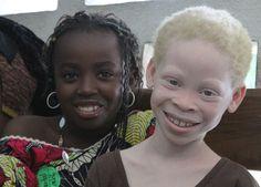 albinos africanos - Buscar con Google