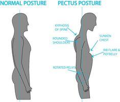 postural problems with Pectus Excavatum