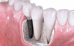 Vita Smile to Centrum Stomatologiczne w Warszawie, które specjalizuje się w leczeniu implantów.