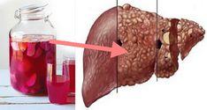 Healthy Liver, Home Remedies, Dog Food Recipes, Beef, Pudding, Simple, Desserts, Medicine, Per Diem