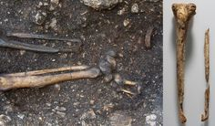 Prosthesis found on Ancient Skeleton of Man whose Foot was likely Cut Off in Battle http://www.ancient-origins.net/news-history-archaeology/prosthesis-found-ancient-skeleton-man-whose-foot-was-likely-cut-battle-020661